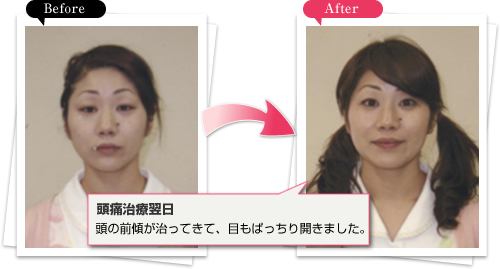 Before �� After